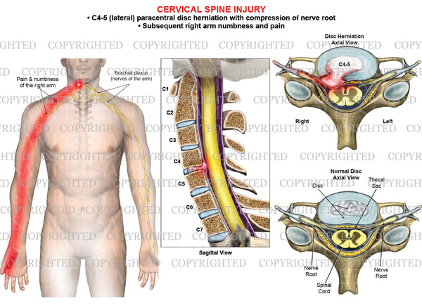 C4-5 disc herniation - paracentral - right arm nerve pain numbness