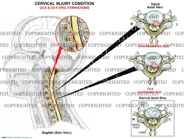 2 level - C4-5 and C5-6 disc herniations