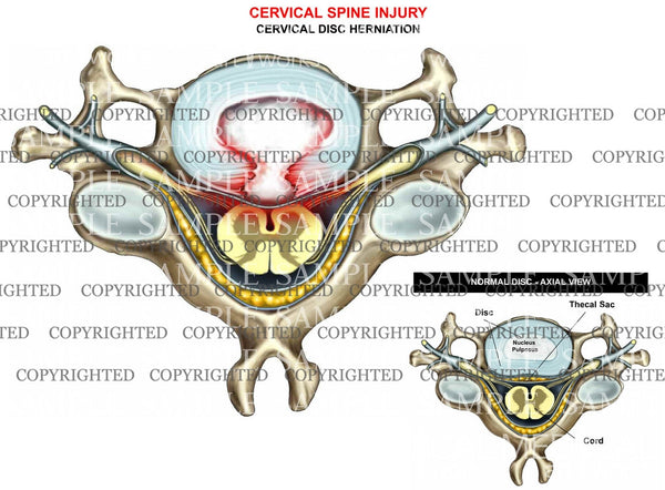 Cervical herniation- central - axial view