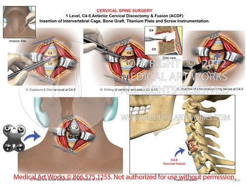 1 level - C4-5 Anterior cervical discectomy and fusion ACDF - African American