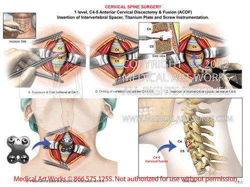 1 level - C4-5 Anterior cervical discectomy and fusion ACDF