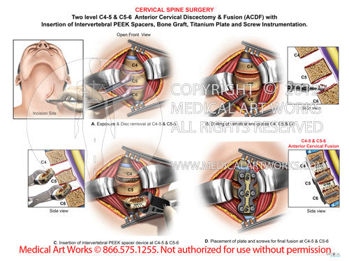 2 Level - C4-5  C5-6 Anterior Cervical Discectomy And -7838