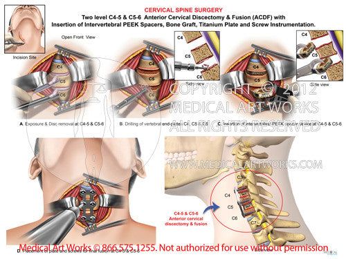 2 Level - C4-5 & C5-6 Anterior cervical discectomy and fusion. ACDF - Male