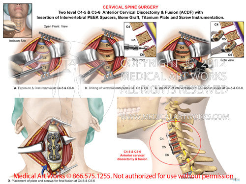 2 Level - C4-5 & C5-6 Anterior cervical discectomy and fusion. ACDF - Female