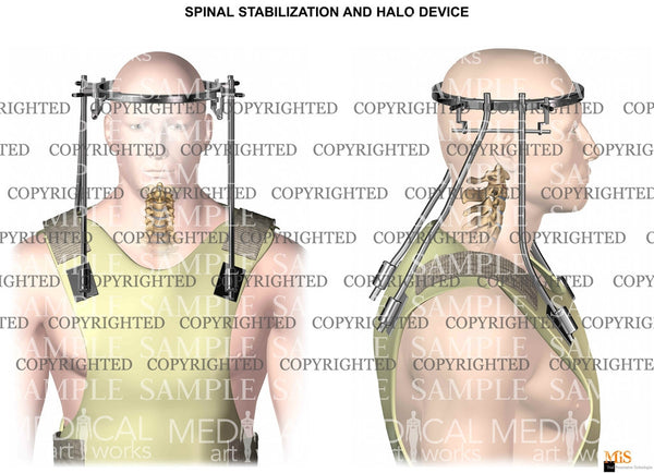 Halo device - spinal stabilization