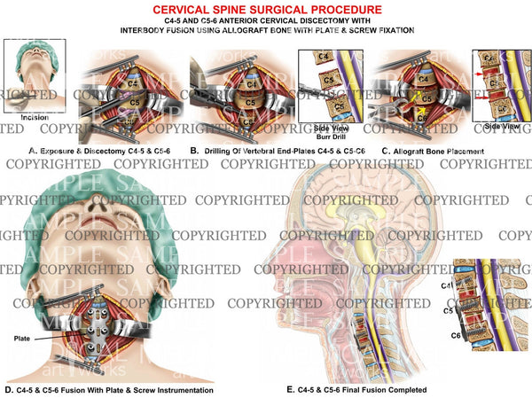 2 Level - C4-5 and C5-6 cervical discectomy and fusion