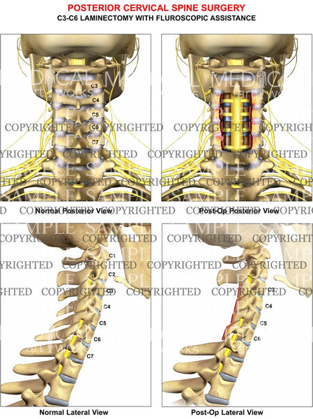 3 level - C3-C6 cervical spine posterior laminectomy