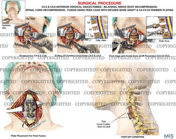 2level - C4-5 and C5-6 cervical discectomy and fusion using peek cage