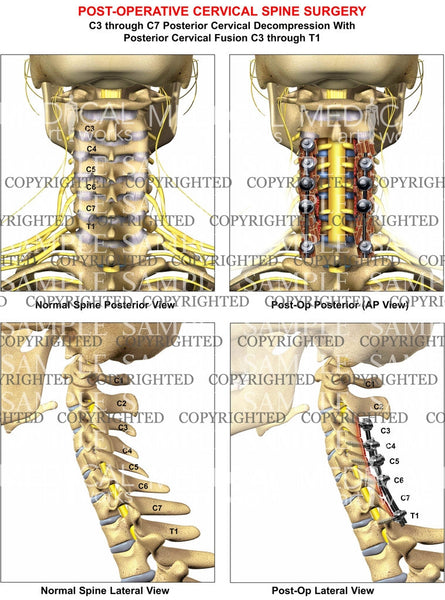 4  level - C3-C7 Post-op cervical spine decompression