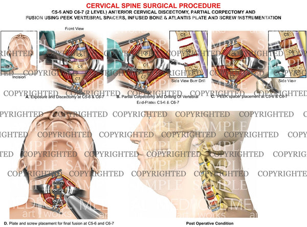 C5-6, C6-7 cervical discectomy + fusion - PEEK