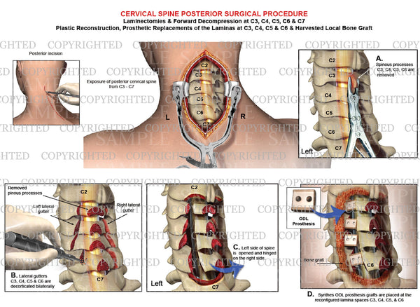 P osterior cervical surgery - Open door laminoplasty