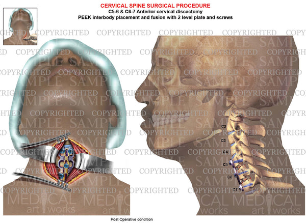 C5-6 - C6-7 Post operative condition cervical discectomy and fusion - PEEK - plate & screws
