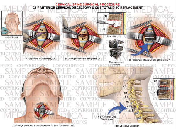 1 Level - C6-C7 anterior cervical discectomy and fusion - cervical artificial disc replacement