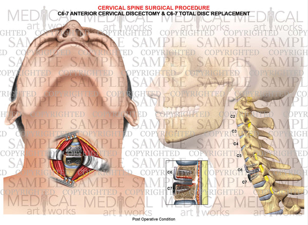 1 Level - C6-C7 Anterior cervical discectomy and fusion - cervical artificial disc replacement - post-op condition