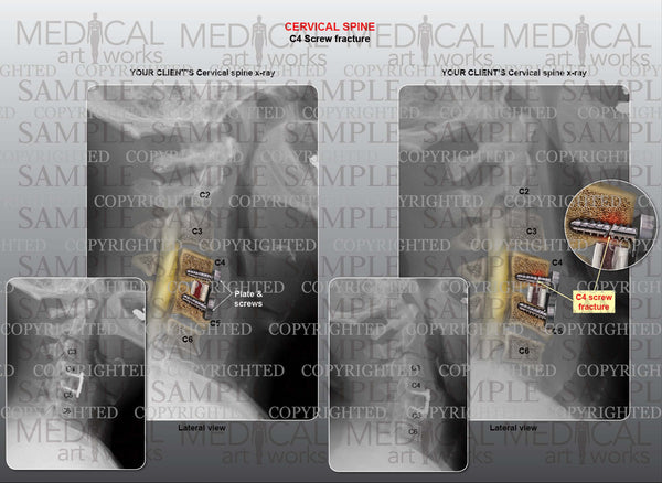 1 level - C4 screw fracture and fusion