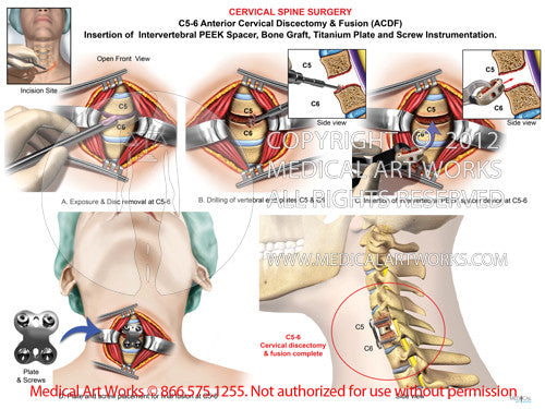 1 level - C5-6 Anterior cervical discectomy and fusion ACDF