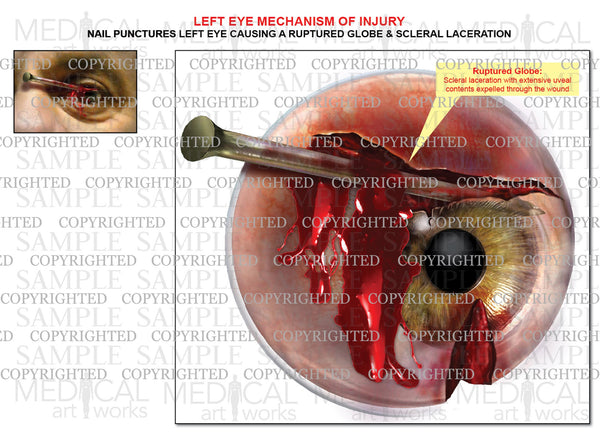 Traumatic Eye Injury - A nail ruptures globe and lacerates sclera