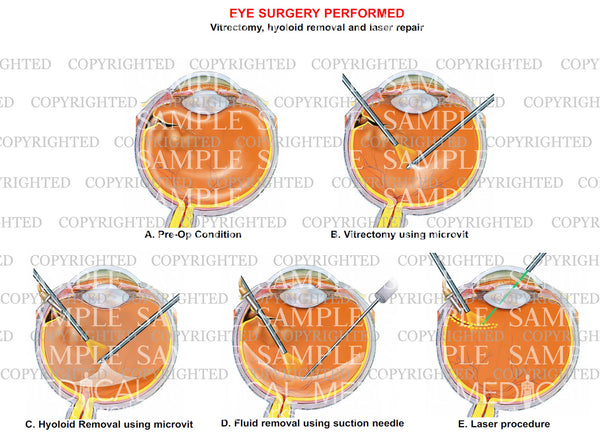 Eye surgery - Vitrectomy, hyoloid removal and laser repair