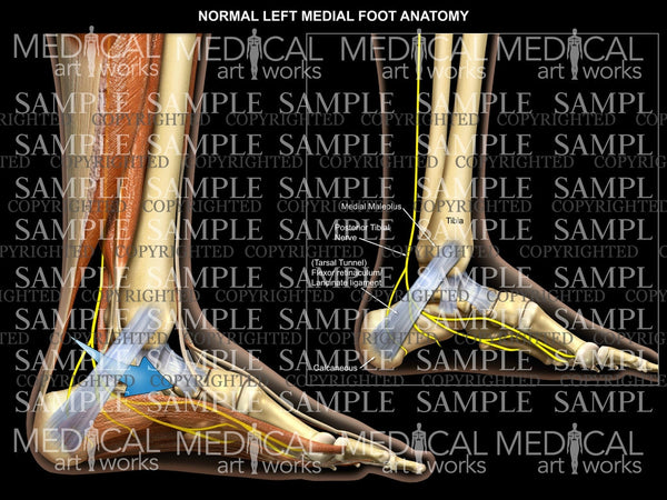 Left foot normal anatomy - medial view