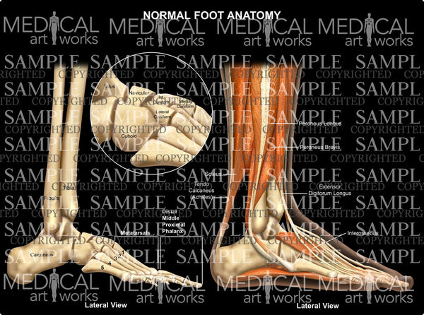Normal foot anatomy - lateral view