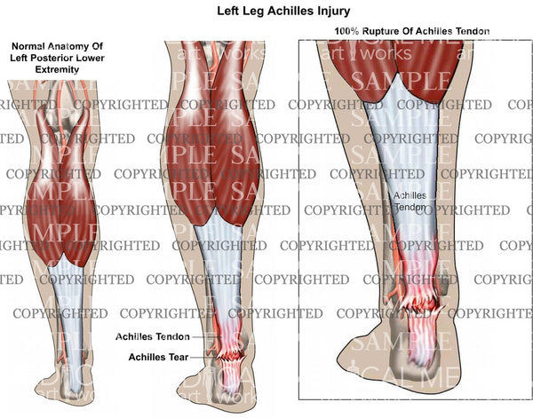 Left achilles rupture