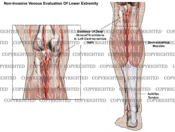 Non-Invasive venous evaluation of lower extremity