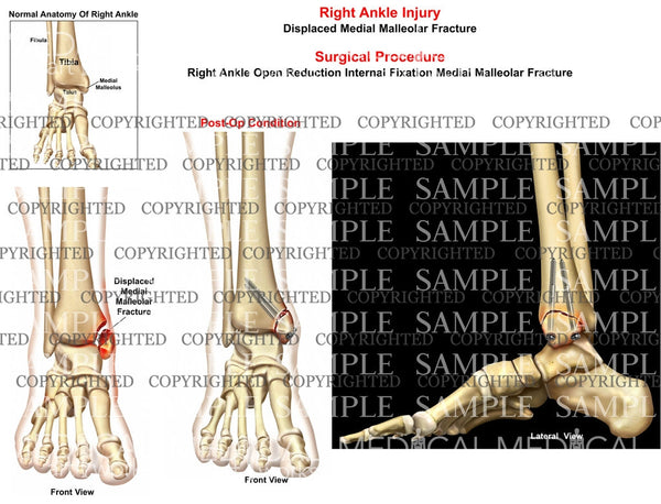 Right medial malleolus fracture displacement - ORIF