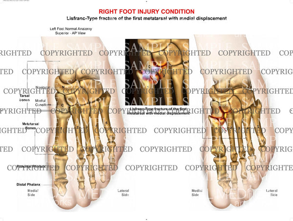 Injury to left midfoot with fracture and displacement