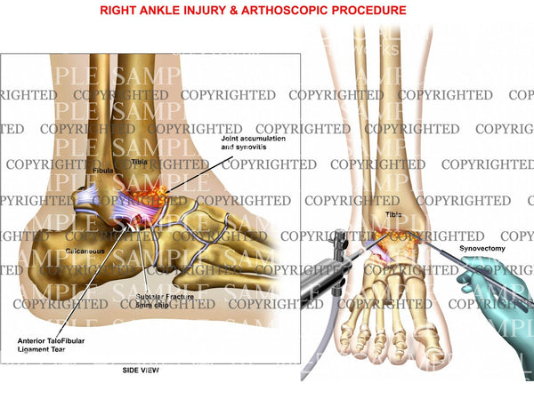 Right Ankle Injury & Arthoscopic Procedure