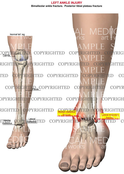 Left Ankle and tibia injury