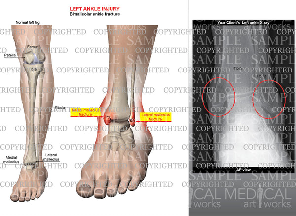 Left ankle bimalleolar fracture with injury x-ray