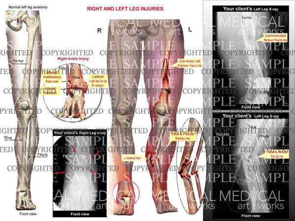 Right and Left leg injuries