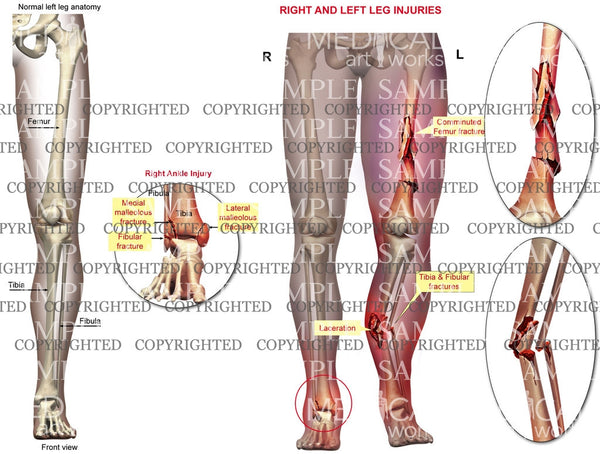 Right and Left multiple skeletal fractures