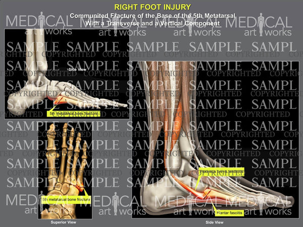 Right foot 5th metatarsal fracture