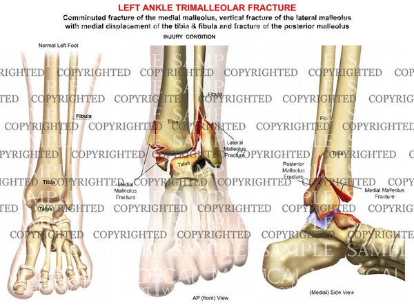 Left Ankle trimalleolar Fracture