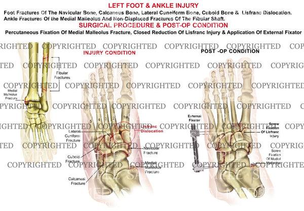 Left midfoot lisfranc dislocation & closed reduction, external fixation