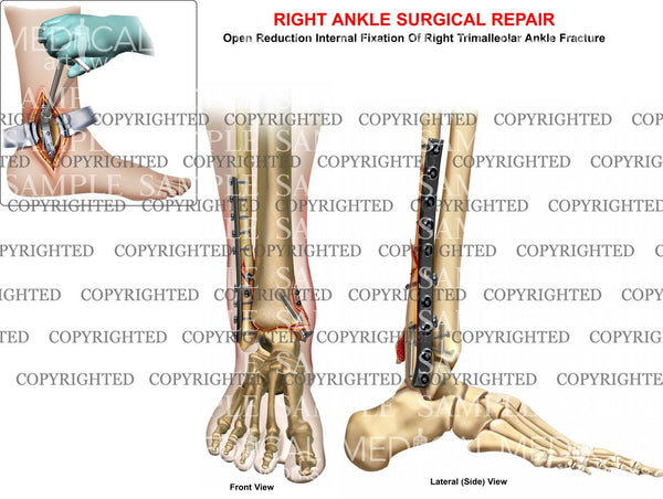 Trimalleolar ankle fracture & plate ORIF