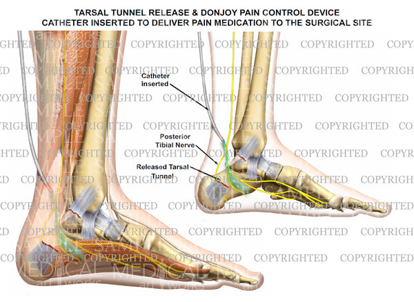 Tarsal tunnel release & Donjoy pump