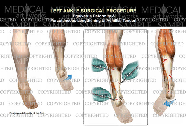 Left equivarus achilles tendon lengthening