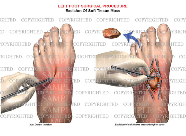 Surgical excision of left foot ganglion cyst