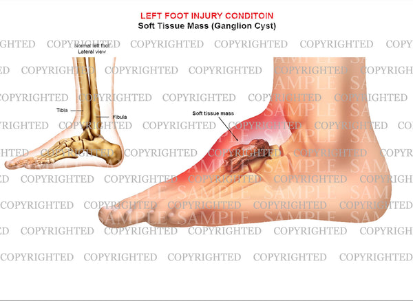 Left foot ganglion cyst