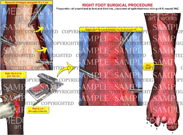 Right foot integra removal and placement of skin graft