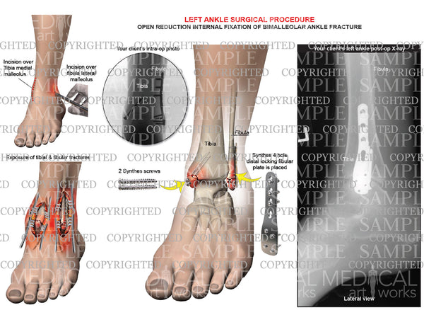 Left ankle and tibia bimalleolar fracture -ORIF