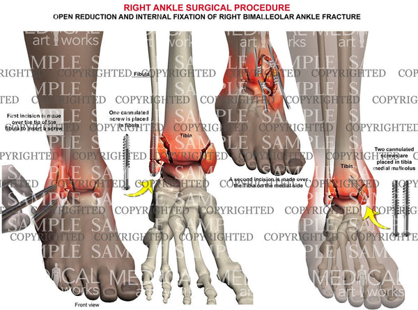Right bimalleolar fracture & screw fixation