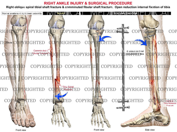Right oblique tibial fracture & rod fixation