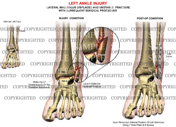 Left ankle lateral malleolus fracture & plate fixation