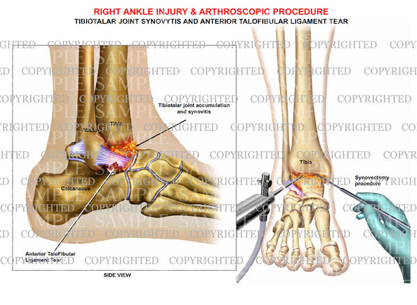 Talofibular ligament tear, joint synovitis & synovectomy