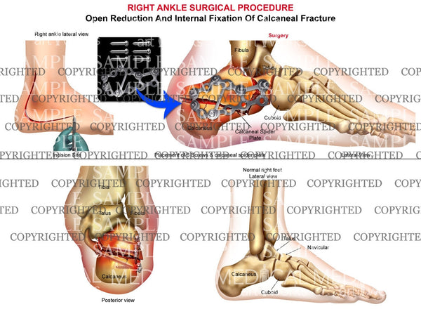 Right calcaneal fracture & plate fixation - ORIF