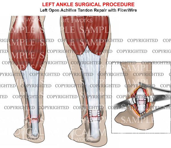 Achilles tendon tear & repair
