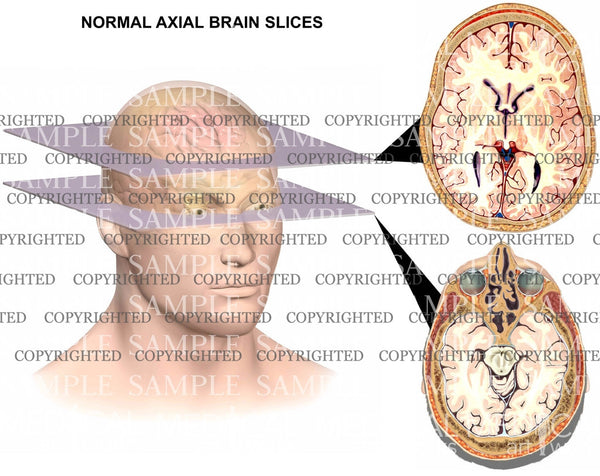 Normal brain anatomy-axial views